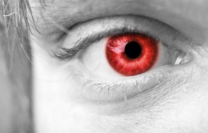 Halloween Contacts ...The Dangers of Cosmetic Contact Lenses West Side Eye Clinic
