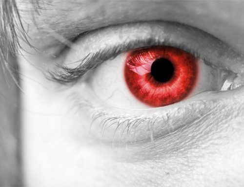 Halloween Contacts …The Dangers of Cosmetic Contact Lenses