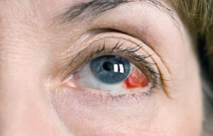 Sports and eye injuries